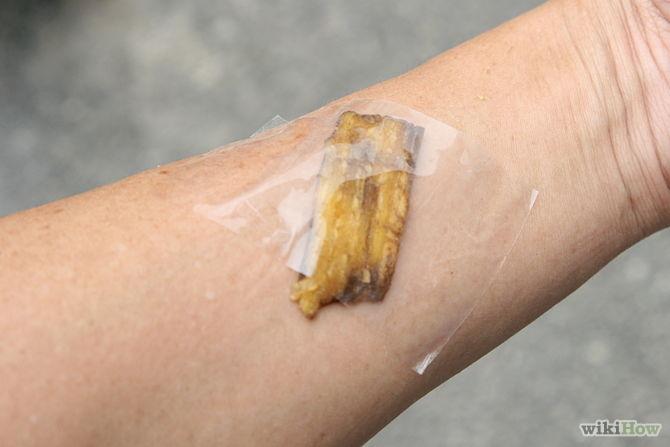 utiliser peau de banane pour les verrues - Use-Banana-Peels