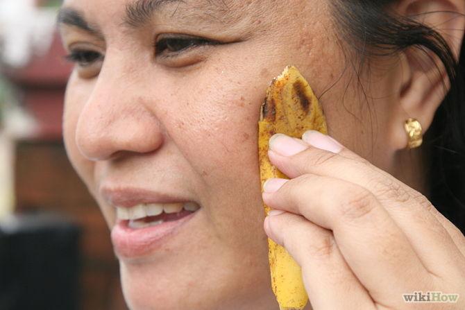 soigner l'acné avec la peau de banane -Use-Banana-Peels