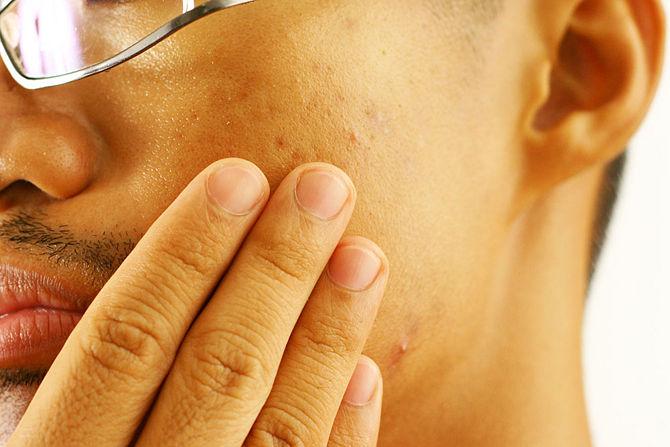 Etape 2 traiter acne avec peau de banane -Treat-Acne-With-Banana-Peels-4