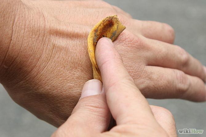 soulager morsures, piqures, rayures avec la peau de banane -Use-Banana-Peels