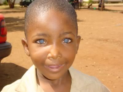 African With Waardenburg - noir aux yeux bleus