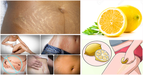 4 Bienfaits Du Citron Pour Les Vergetures Afroculture Net